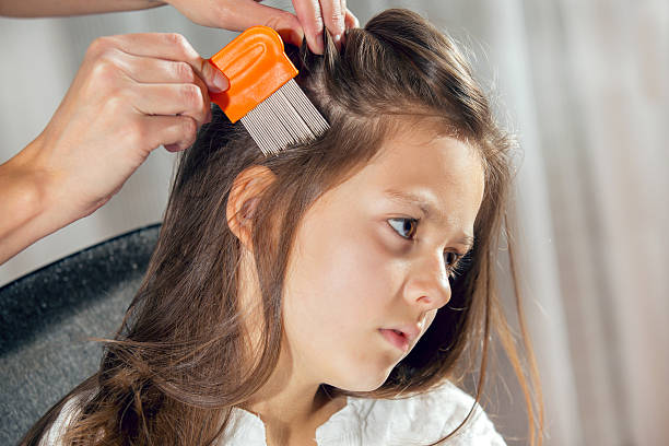 12 Home Remedies To Get The Rid Of Head Lice