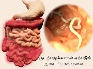worm Infection Jaundice
