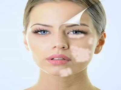 Skin Color Changes Detract From Beauty