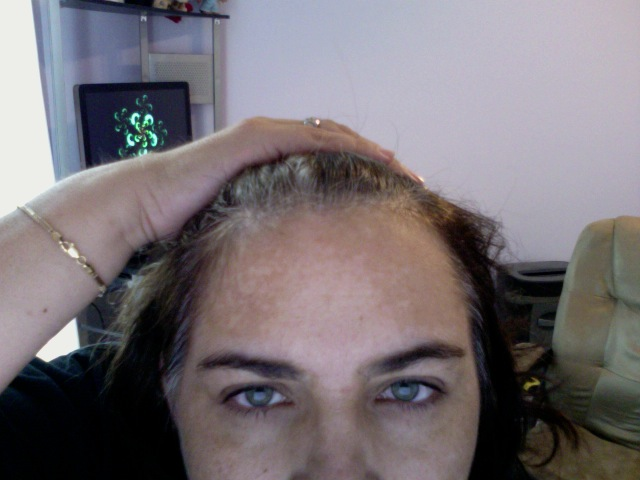 How do I reduce black marks caused by pimples on my forehead?