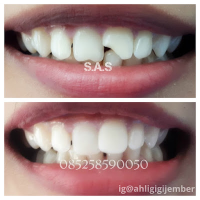 Foto hasil penambalan perbaikan dan sambung gigi patah cuil gopel