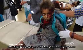 Yemen school bus attack survivor pleads for others