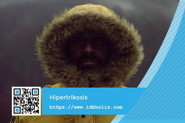 Hipertrikosis