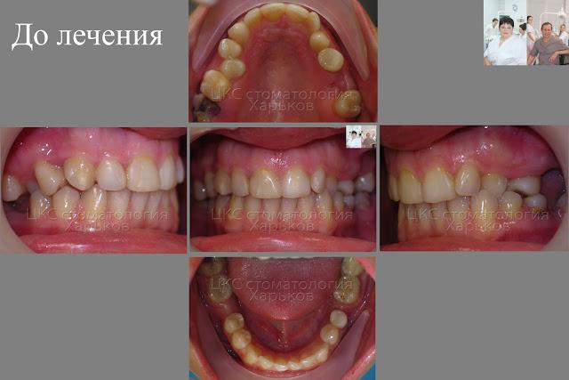 Зубы пациента до лечения брекетами