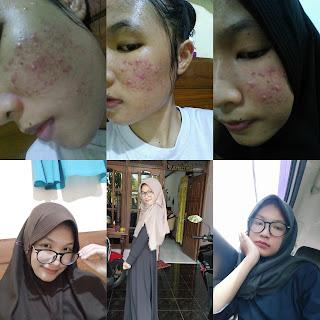 Perjuangan Melawan Jerawat Dengan Skincare di Bawah 100k