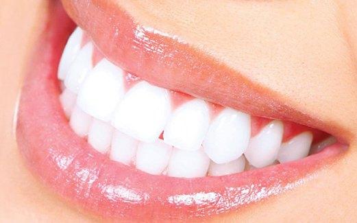 Cara Ampuh Memutihkan Gigi Kuning Dengan Cepat Dan Alami Semua