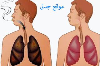 علاج الكحه للاطفال جابر القحطاني