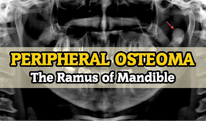 CLINICAL CASE: PERIPHERAL OSTEOMA in the Ramus of Mandible