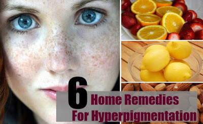 Top 6 Natural Remedies to Reduce Pigmentation and Dark Spots from Skin