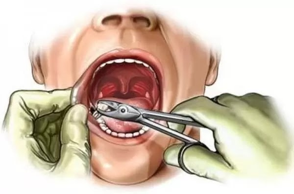 Những tác hại khi nhổ răng bạn cần biết