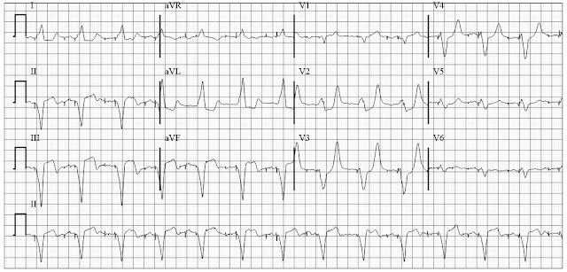 MI in a patient with dual chamber pacemaker