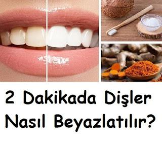 2 Dakikada Dişler Nasıl Beyazlatılır