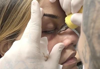 Dermatologistas condenam nova moda de tatuagem para cobrir olheiras