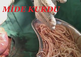 Mide Kurdu