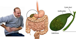 Powerful Chinese Secret To Remove Gallstones In Just 7 Days
