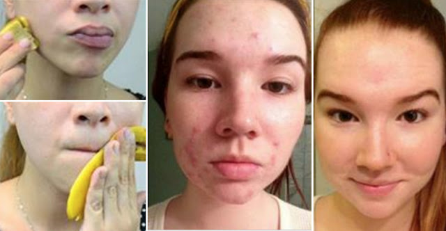 How To Use Banana Peels To Get Rid Of Pimples And Acne