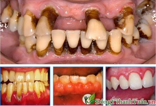 Viêm quanh răng bệnh răng miệng thường gặp ở trẻ em