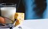 Οστεοπόρωση: Αυτές είναι οι τροφές που ενισχύουν τα οστά...