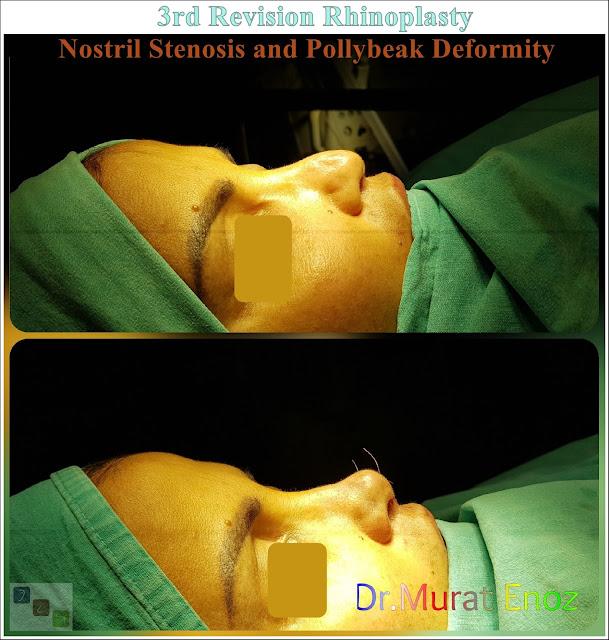 3rd Revision Rhinoplasty - Nostril Stenosis and Pollybeak Deformity