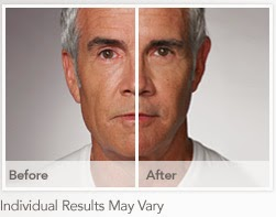 rnav-photos-1 Real Results with RADIESSE + MENAesthetics