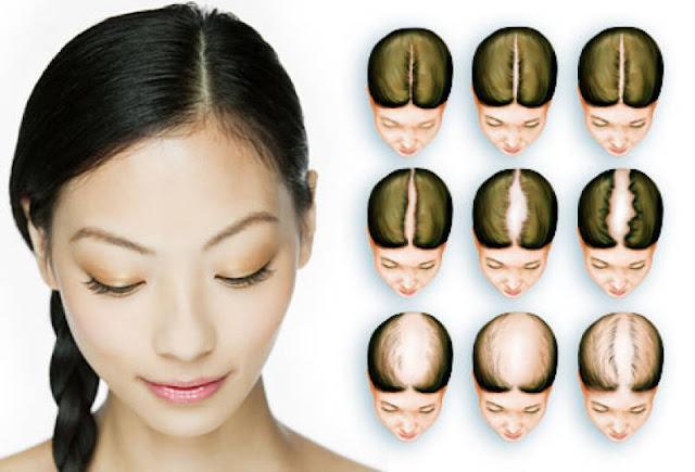 Rambut rontok akibat gangguan hormon
