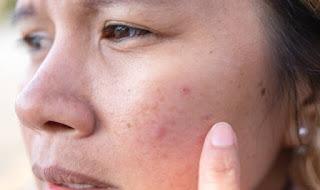 طرق فعالة لعلاج الشعيرات الدموية في الوجه طبيعياً