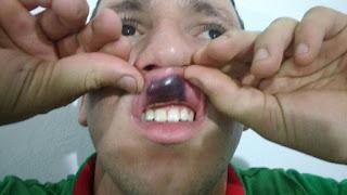 arbitros-futbol-ferreira agredido
