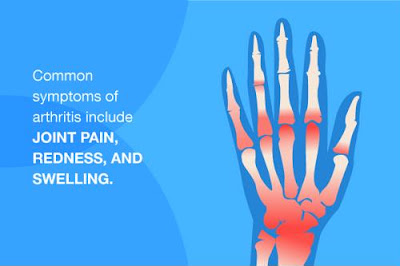 common arthritis symptoms