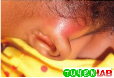 12-month-old girl with protrusion of the auricle and erythema and swelling in the left mastoid area