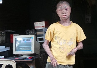 Derita Remaja Berkulit Bak Ular dari Tangerang Selatan