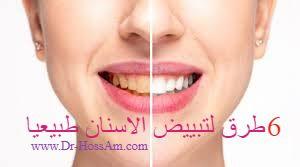 6 طرق لتبييض الاسنان طبيعيا