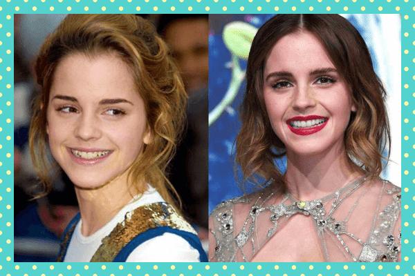 Emma Watson Eski Yeni Dişleri