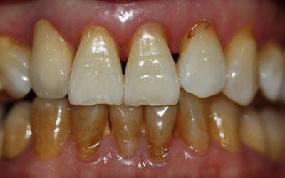 Pada umumnya perokok sulit untuk memiliki gigi yang putih Cara Memutihkan Gigi Bagi Perokok Aktif