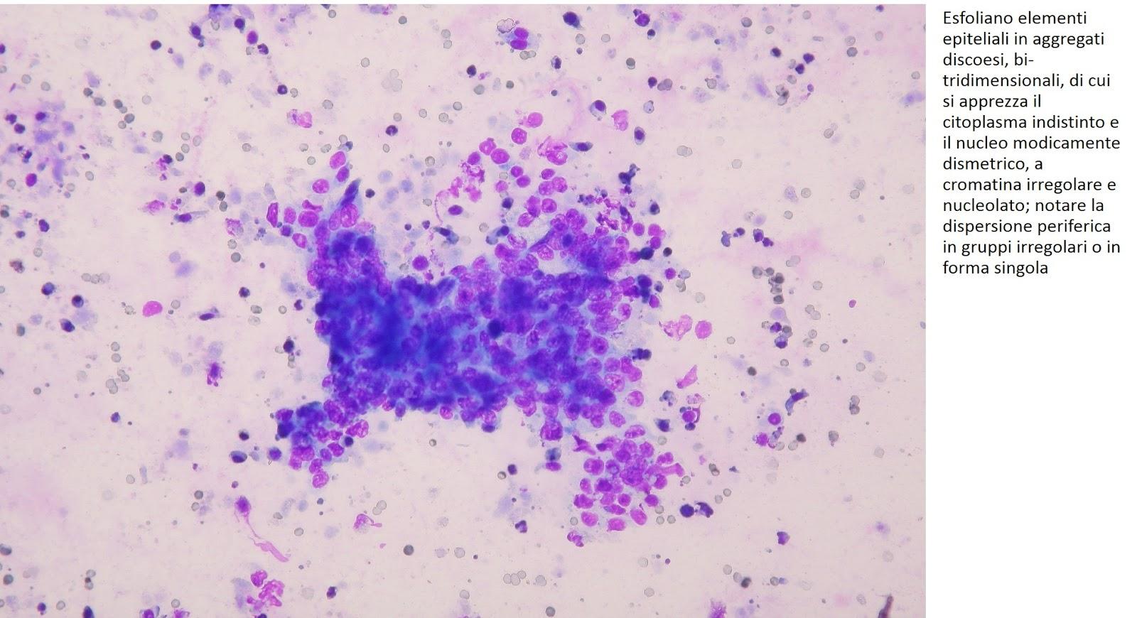 frammento di tessuto prostatico con focolaio di adenocarcinoma 1