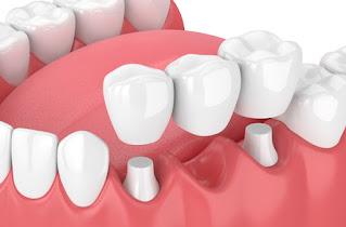 Klasik Köprü diş ne kadar dayanır