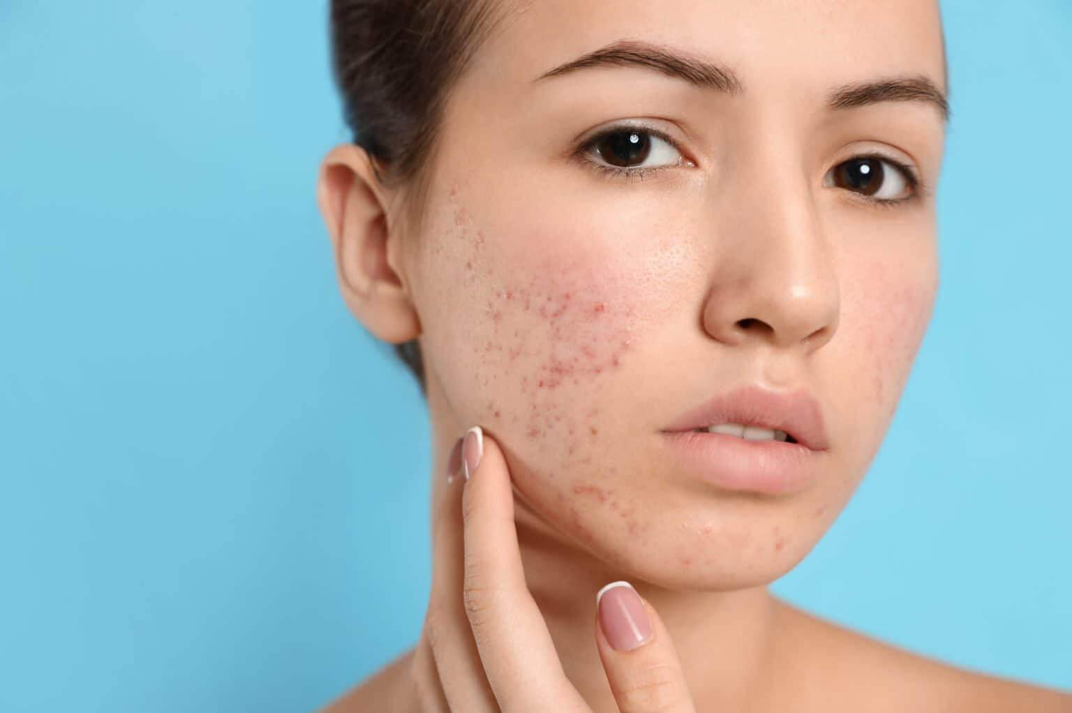 acné rosace quel traitement