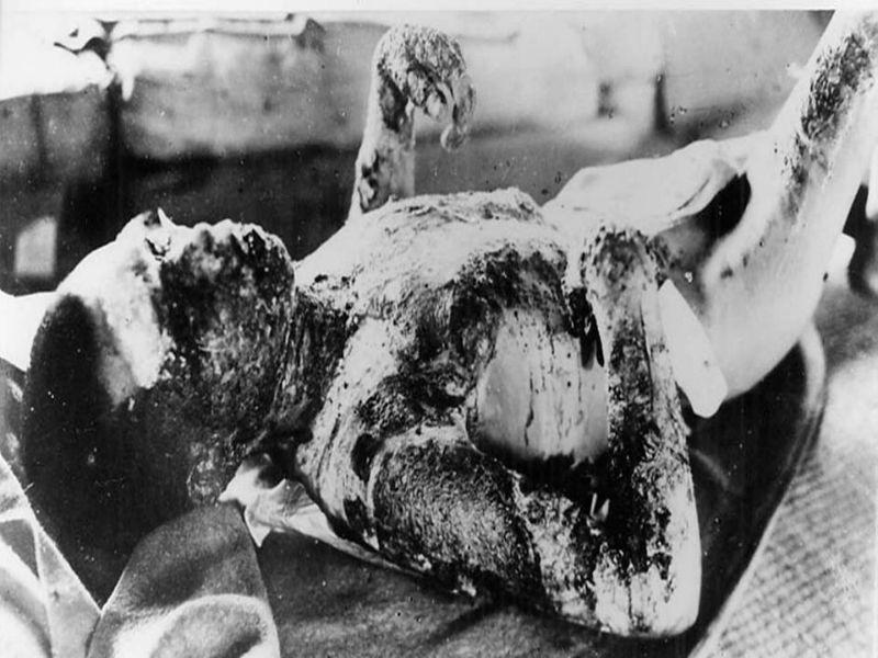 Fotos das vitimas da bomba atomica 1