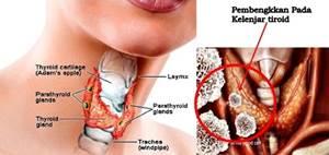 Obat Kelenjar Tiroid Di Apotik