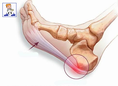 الشوكة العظمية,علاج الشوكة العظمية,الشوكه العظميه,الشوكة,علاج مسمار العظم,الشوكة العظمية فى كعب الرجل,علاج,مسمار القدم,الكعب,علاج الشوكة العظمية بالثوم,علاج الشوكة العظمية بالكعب,العظمية,القدم,علاج مسمار القدم,التهاب القدم,وقاية