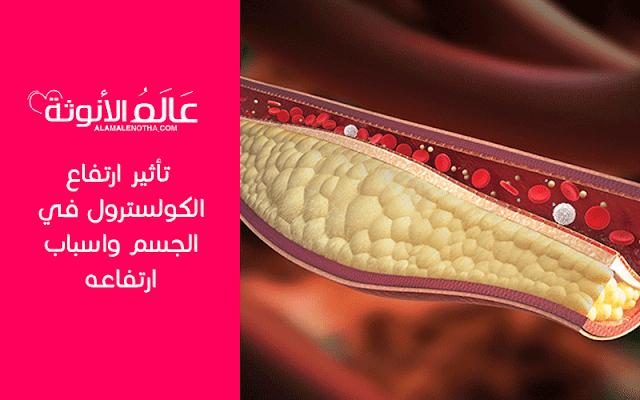تأثير ارتفاع الكولسترول في الجسم واسباب ارتفاعه