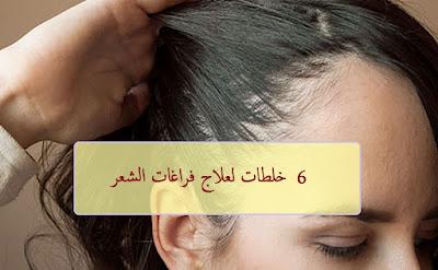 خلطات لعلاج فراغات الشعر