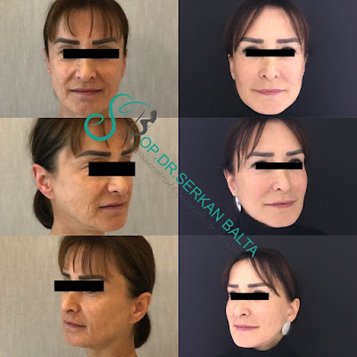 Face Lifting in İstanbul / Turkey