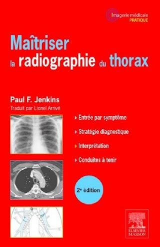 Maîtriser la radiographie du thorax