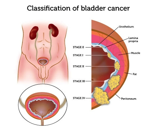 Classification Of Bladder Cancer - Bladder Cancer, An Introduction