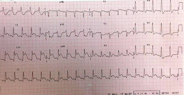 acute myocardial infarction (inferior wall STEMI)