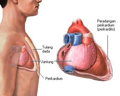 Sakit Radang Lapisan Jantung Perikarditis