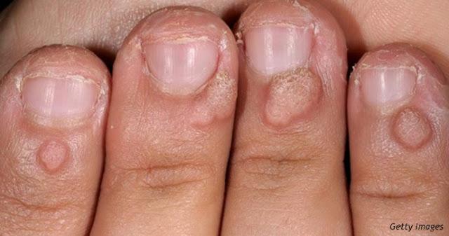Слабонервным не смотреть: 5 ужасных последствий у тех, кто грызет ногти