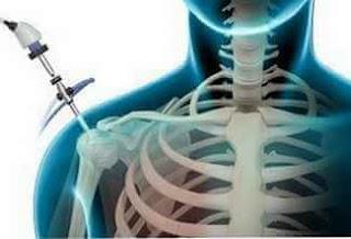 omuz artroskopisi