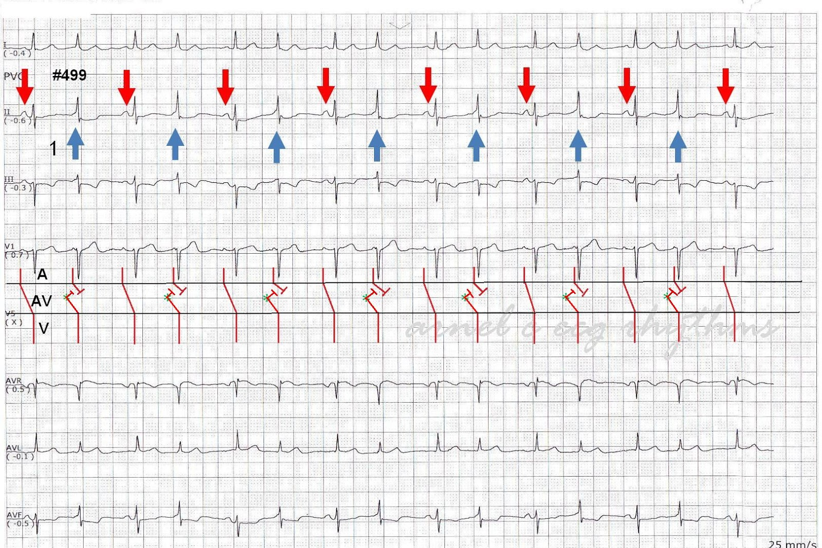 ecg rhythms  intermittent preexcitation  qrs alternans or