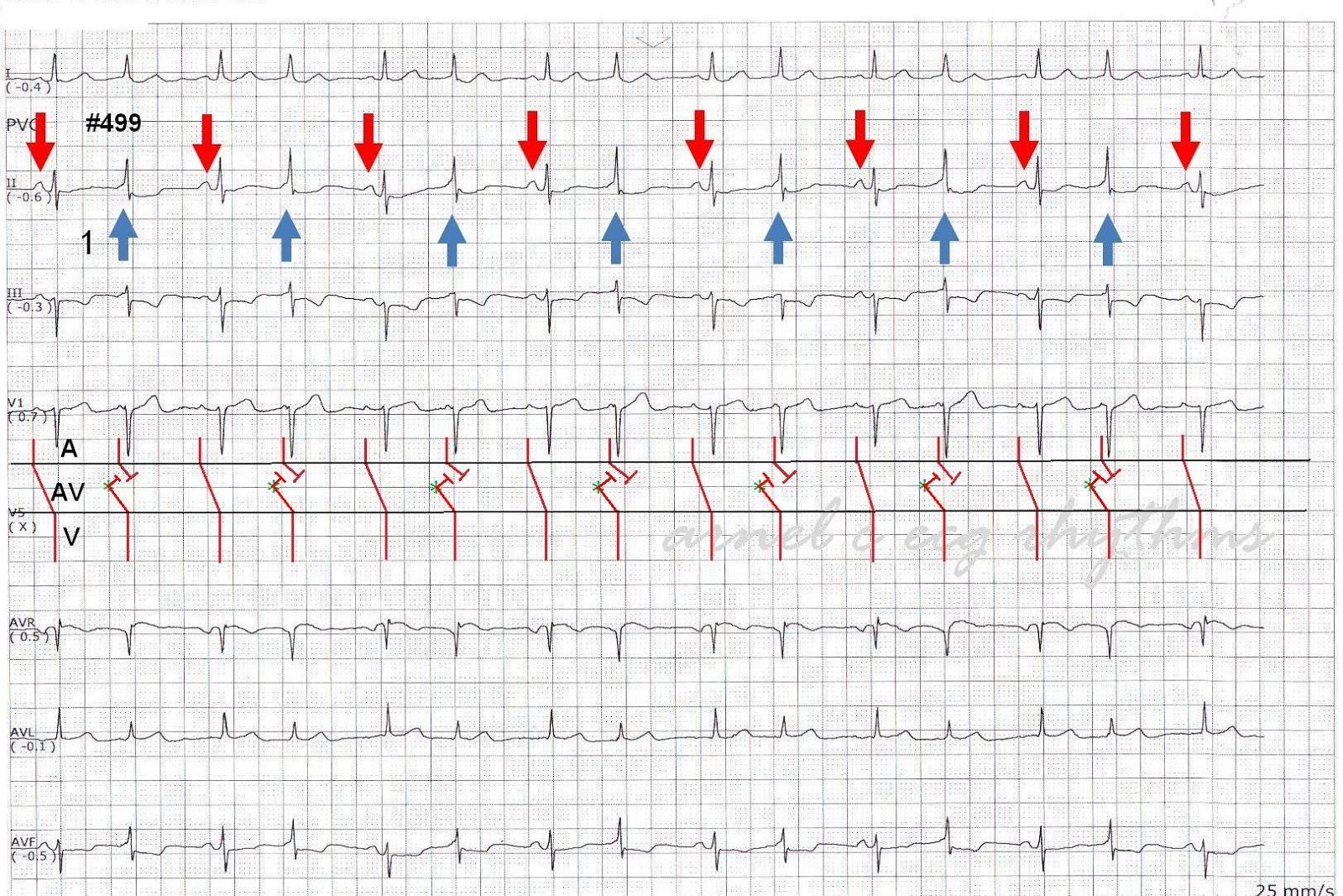 Ecg rhythms intermittent preexcitation qrs alternans or image 2 ladder diagram ccuart Choice Image